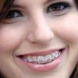 Bøjler til tandregulering